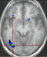 Neurosciences dans les nouveaux programmes de Première S, ES et L