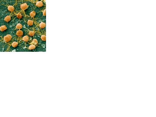 pyrococcus-furiosus.jpg