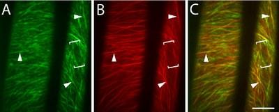 Localisation des cellulose synthases et des molécules de tubuline