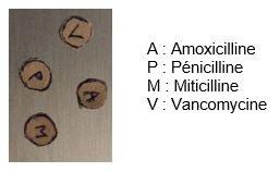 Antibiotiques - Antibiogramme de substitution.JPG
