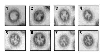 coupes de particules virales
