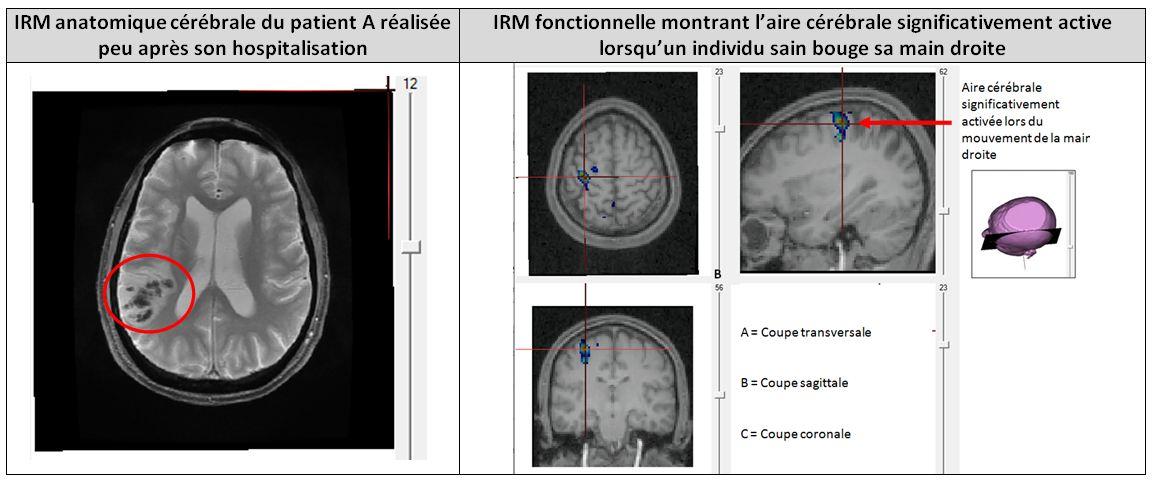 Comparaison lésion patient A motricité main droite sujet sain