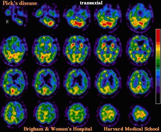 images médicales maladie de Pick