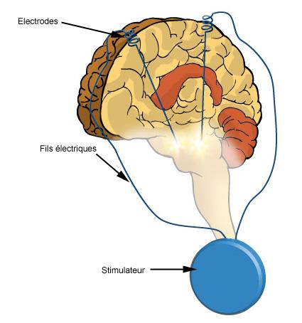 Schéma d'une stimulation cérébrale profonde
