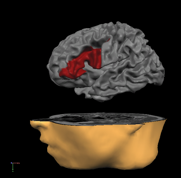 gyrus frontal inferieur gauche.png