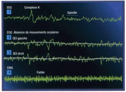Quelques enregistrements caractéristiques du stade 2 du sommeil lent