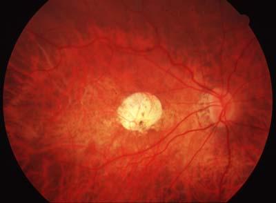 Fond d'oeil du patient (oeil droit)