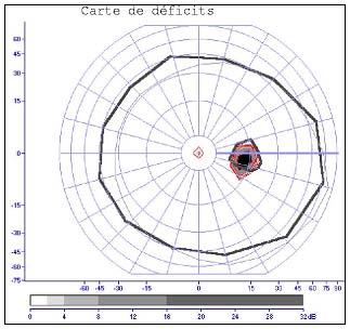 Carte des déficits de l'oeil droit