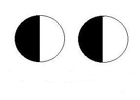 carte des déficits des deux yeux du patient
