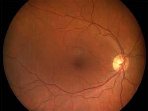 Fond d'oeil droit