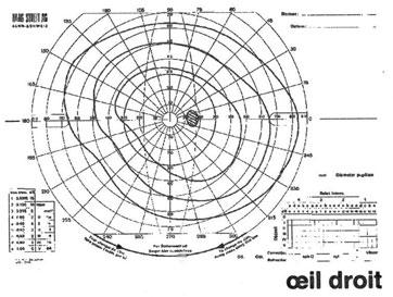 Interprétation des anomalies du champ visuel — Site des ressources d ... Champ visuel normal en périmétrie cinétique