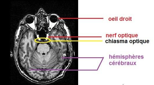 IRM chiasma optique, légendé