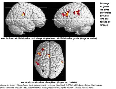 Activite epilepsie 3